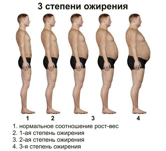 Ожирение и заболевания на призыве