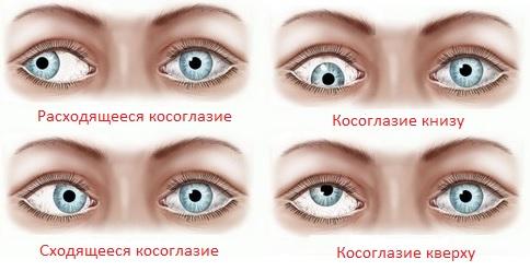 Болезни глаз у призывника