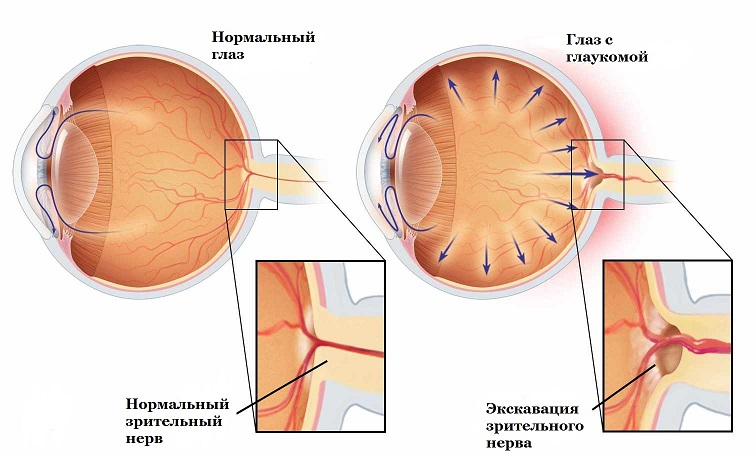заболевание глаукома