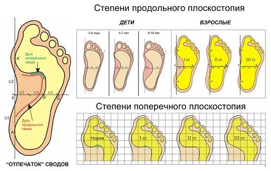 категории плоскостопие