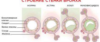бронхиальной астмой в армию