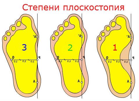 2 степень плоскостопия