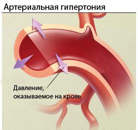 что такое гипертония