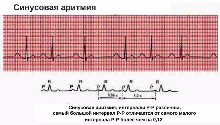 синусовая аритмия у призывника