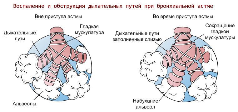 Что делать во время приступа астмы