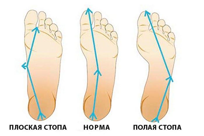 симптомы заболевания плоскостопие