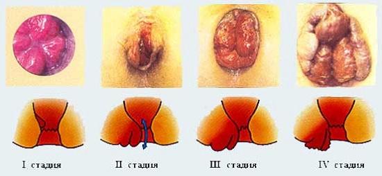 стадии заболевания геморой