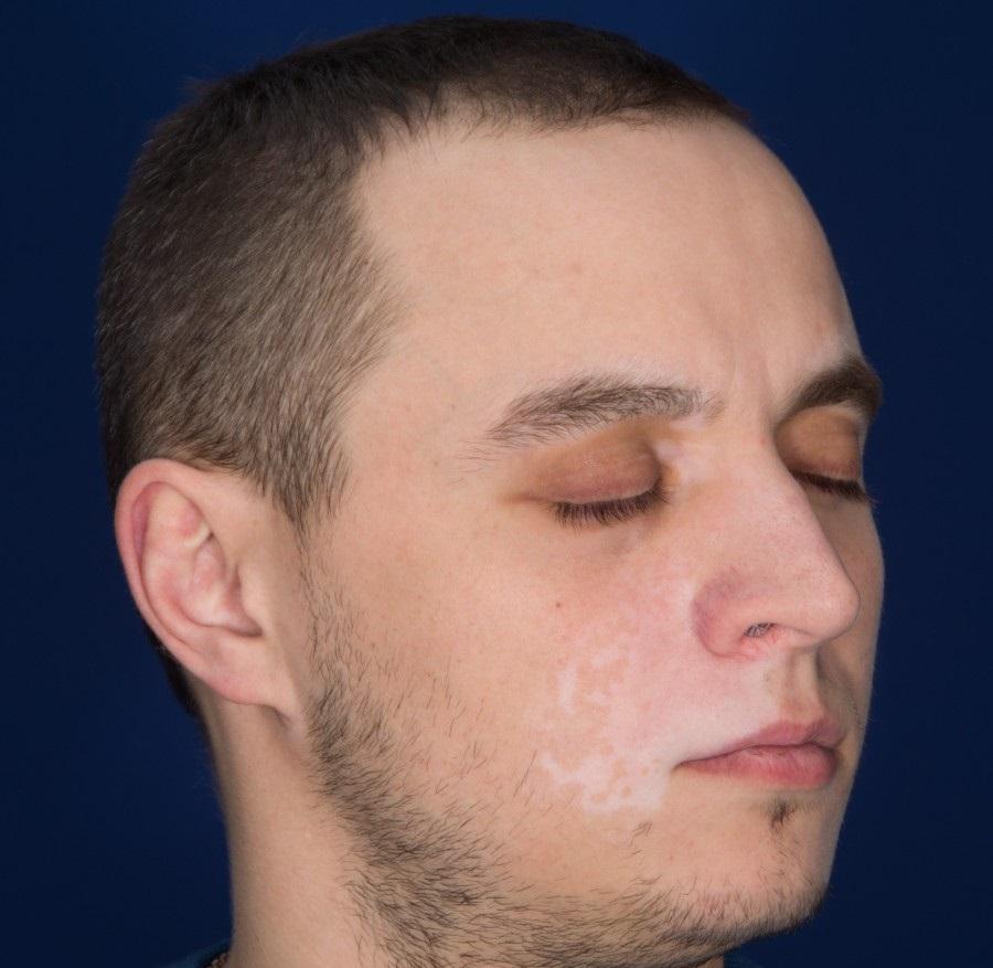 Витилиго на лице