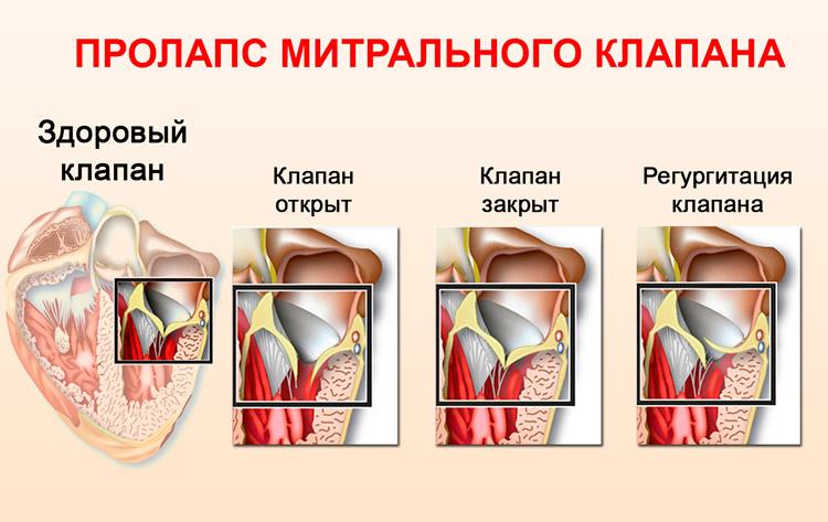 Что такое пролапс сердца